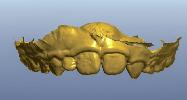 ortodonzia digitale 1