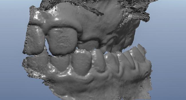 ortodonzia digitale 2