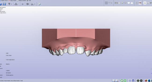 ortodonzia digitale 3