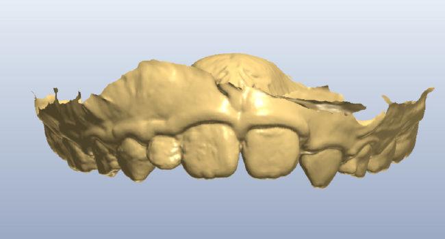 ortodonzia-digitale-01