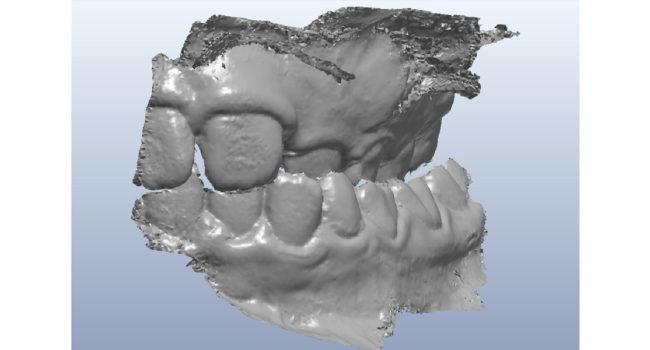 ortodonzia-digitale-02