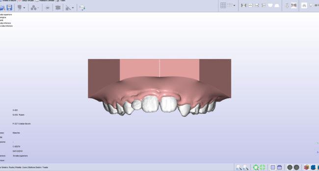 ortodonzia-digitale-05