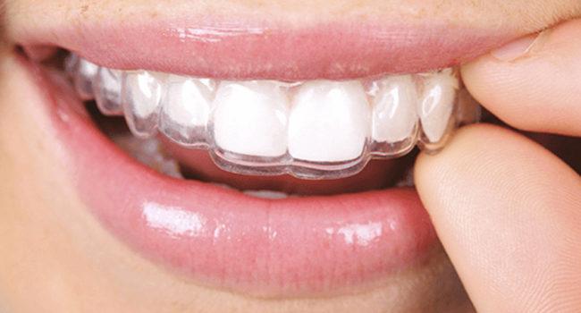 ortodonzia-digitale-08